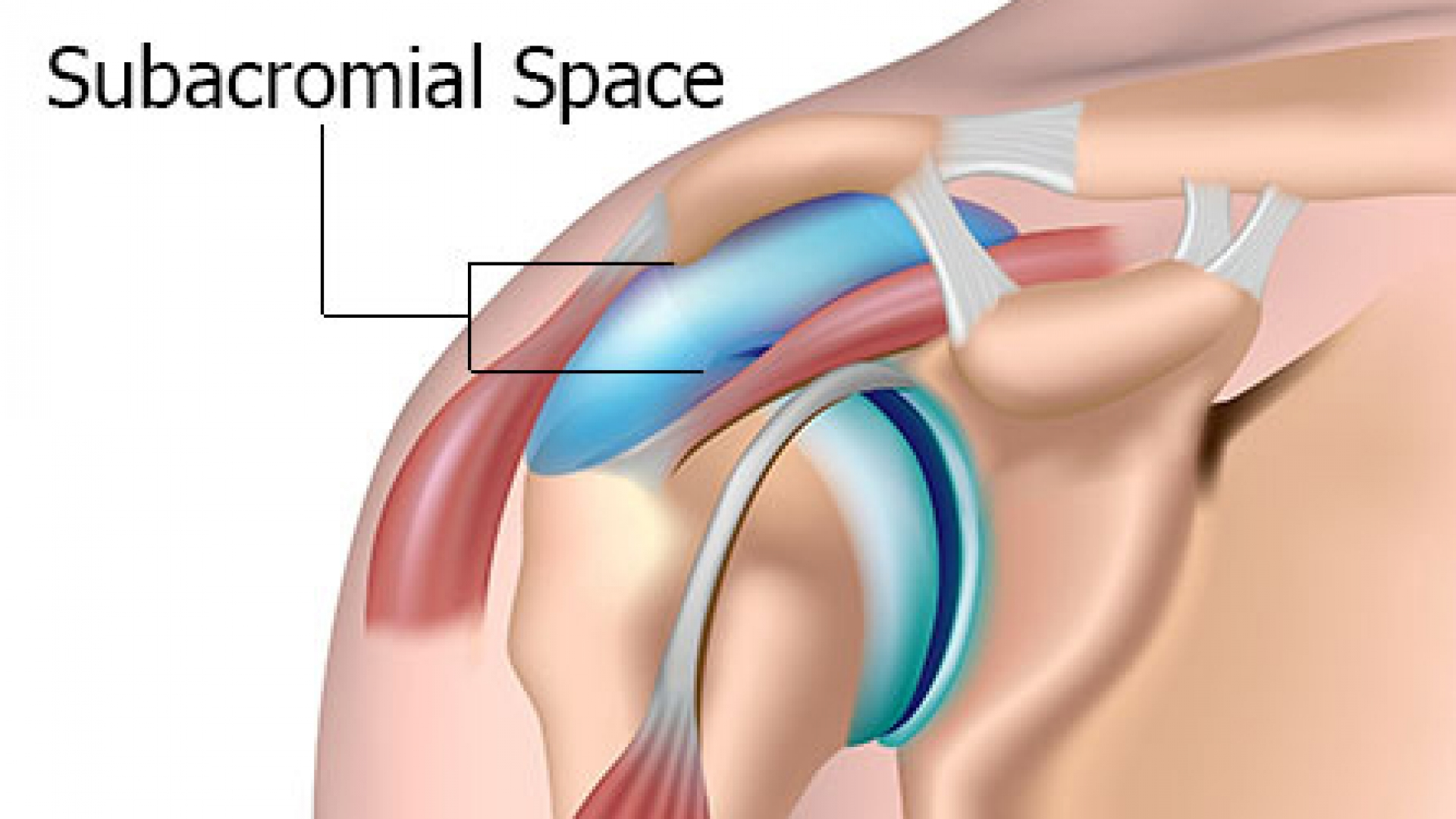 Subacromial Space for Subacromial Impingement